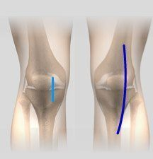 Minimally Invasive Total Knee Arthroplasty